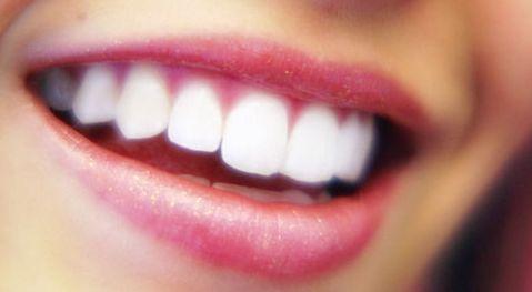 white-teeth-bright-smile-brite-smile-pretty-smile