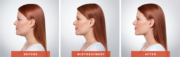 Adra's Kybella procedure before, during, and after photos